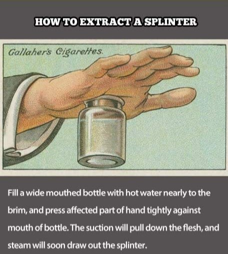 Water - HOW TO EXTRACTA SPLINTER Gallaher's Cigarettes Fill a wide mouthed bottle with hot water nearly to the brim, and press affected part of hand tightly against mouth of bottle. The suction will pull down the flesh, and steam will soon draw out the splinter.
