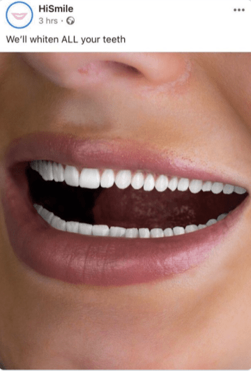 Tooth - HiSmile 3 hrs We'll whiten ALL your teeth