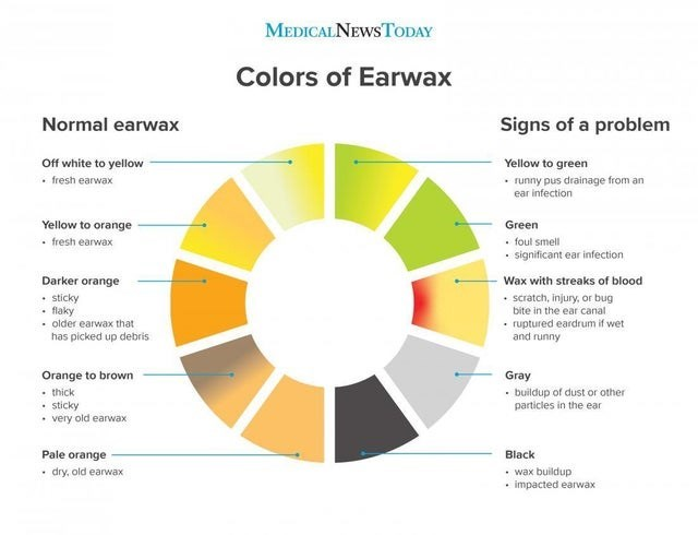 Diagram - MEDICALNEWSTODAY Colors of Earwax Normal earwax Signs of a problem Off white to yellow Yellow to green • fresh earwax • runny pus drainage from an ear infection Yellow to orange Green • fresh earwax • foul smell • significant ear infection Wax with streaks of blood Darker orange • sticky • flaky • older earwax that has picked up debris • scratch, injury, or bug bite in the ear canal • ruptured eardrum if wet and runny Orange to brown • thick • sticky • very old earwax Gray • buildup of