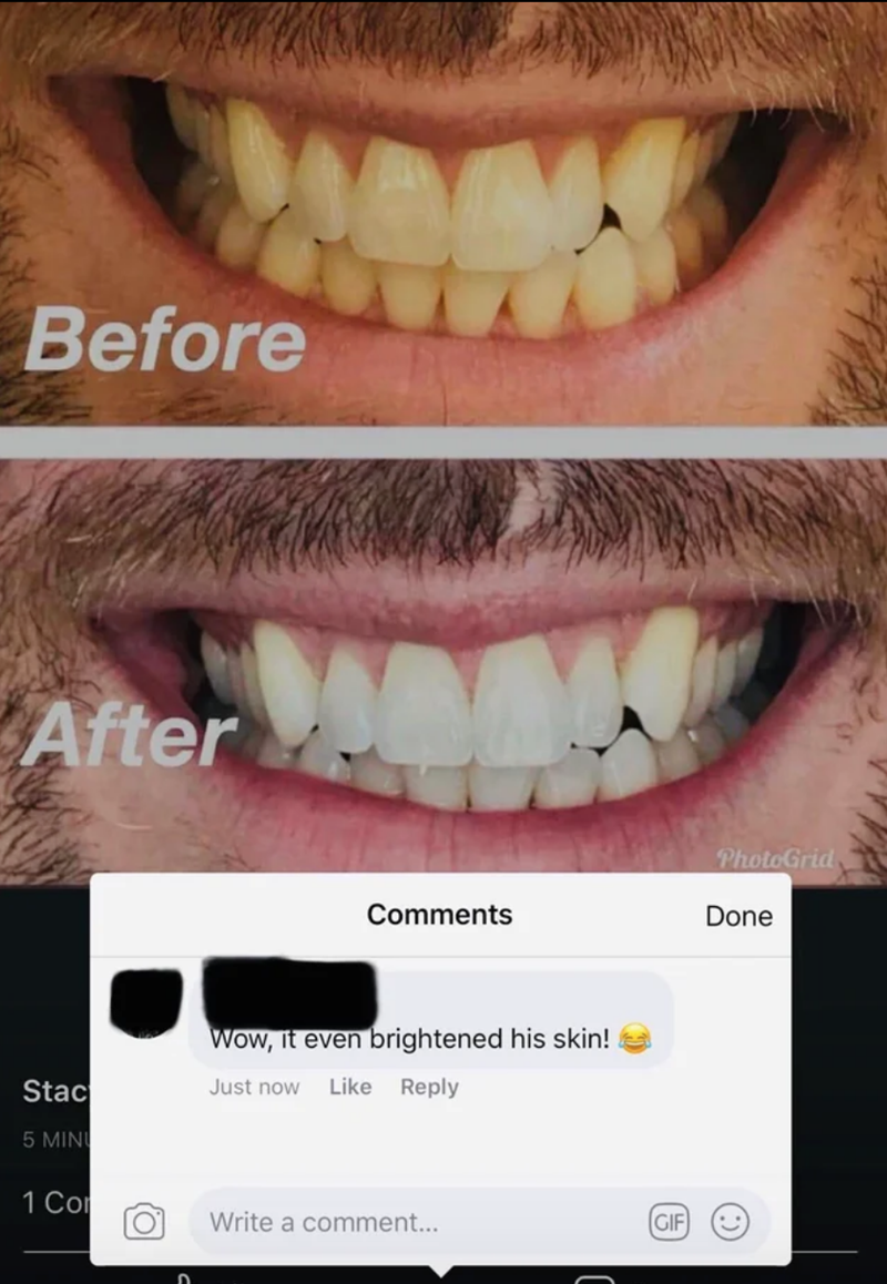 Tooth - Before After PhotoGrid Comments Done Wow, it even brightened his skin! Stac Just now Like Reply 5 MINI 1 Co (GIF Write a comment...