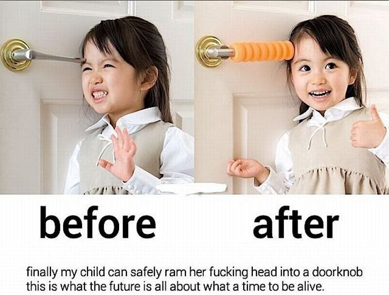 Skin - before after finally my child can safely ram her fucking head into a doorknob this is what the future is all about what a time to be alive.