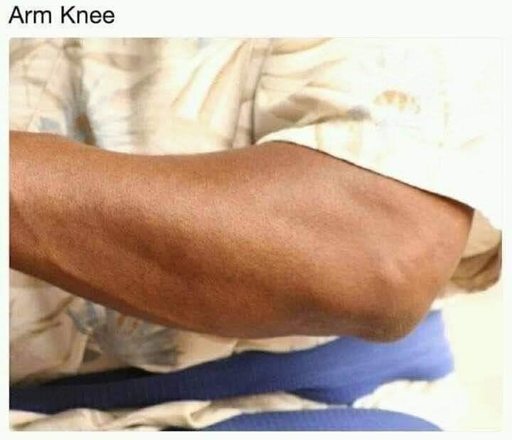 Skin - Arm Knee