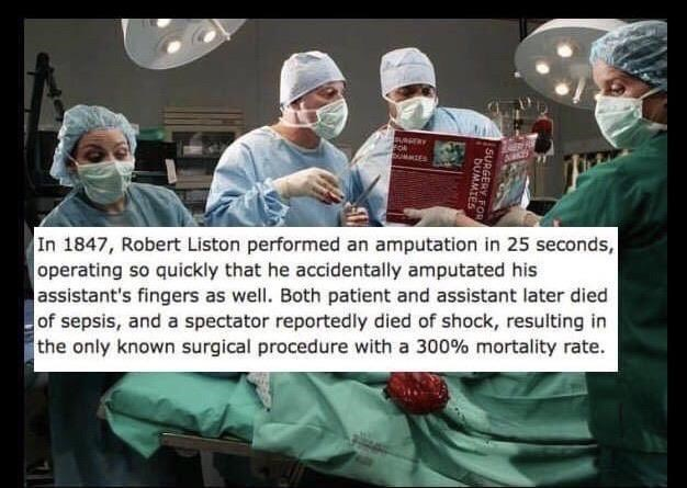 Surgeon - BURGERY UMMIES In 1847, Robert Liston performed an amputation in 25 seconds, operating so quickly that he accidentally amputated his assistant's fingers as well. Both patient and assistant later died of sepsis, and a spectator reportedly died of shock, resulting in the only known surgical procedure with a 300% mortality rate. SURGERY F DUMMIES