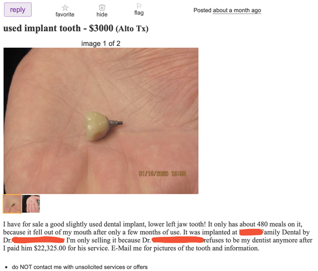 Skin - reply flag Posted about a month ago favorite hide used implant tooth - $3000 (Alto Tx) image 1 of 2 01/10/2029 19:S0 I have for sale a good slightly used dental implant, lower left jaw tooth! It only has about 480 meals on it, because it fell out of my mouth after only a few months of use. It was implanted at i Dr. I paid him $22,325.00 for his service. E-Mail me for pictures of the tooth and information. I'm only selling it because Dr. Family Dental by Drefuses to be my dentist anymore a