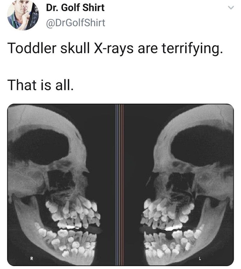 Medical imaging - Dr. Golf Shirt @DrGolfShirt Toddler skull X-rays are terrifying. That is all. R.