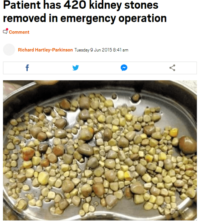 Food - Patient has 420 kidney stones removed in emergency operation Comment Richard Hartley-Parkinson Tuesday 9 Jun 2015 8:41 am f