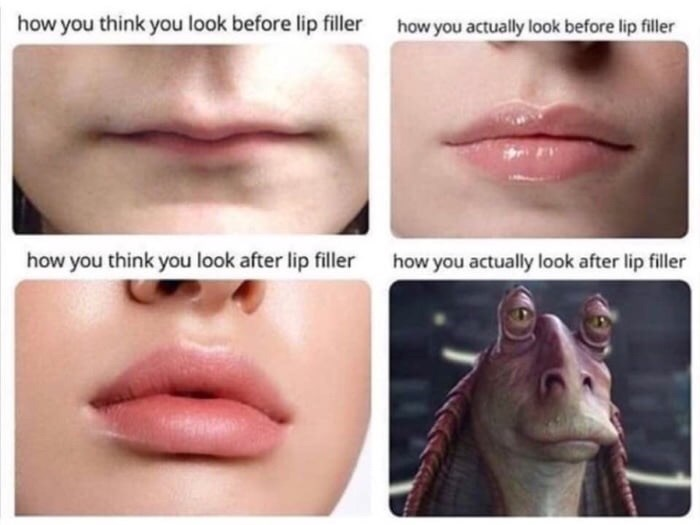 Face - how you think you look before lip filler how you actually look before lip filler how you think you look after lip filler how you actually look after lip filler