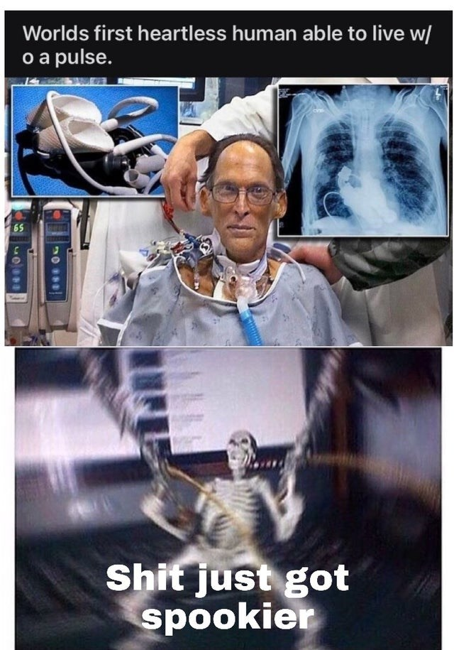 Photography - Worlds first heartless human able to live w/ o a pulse. 65 Shit just got spookier