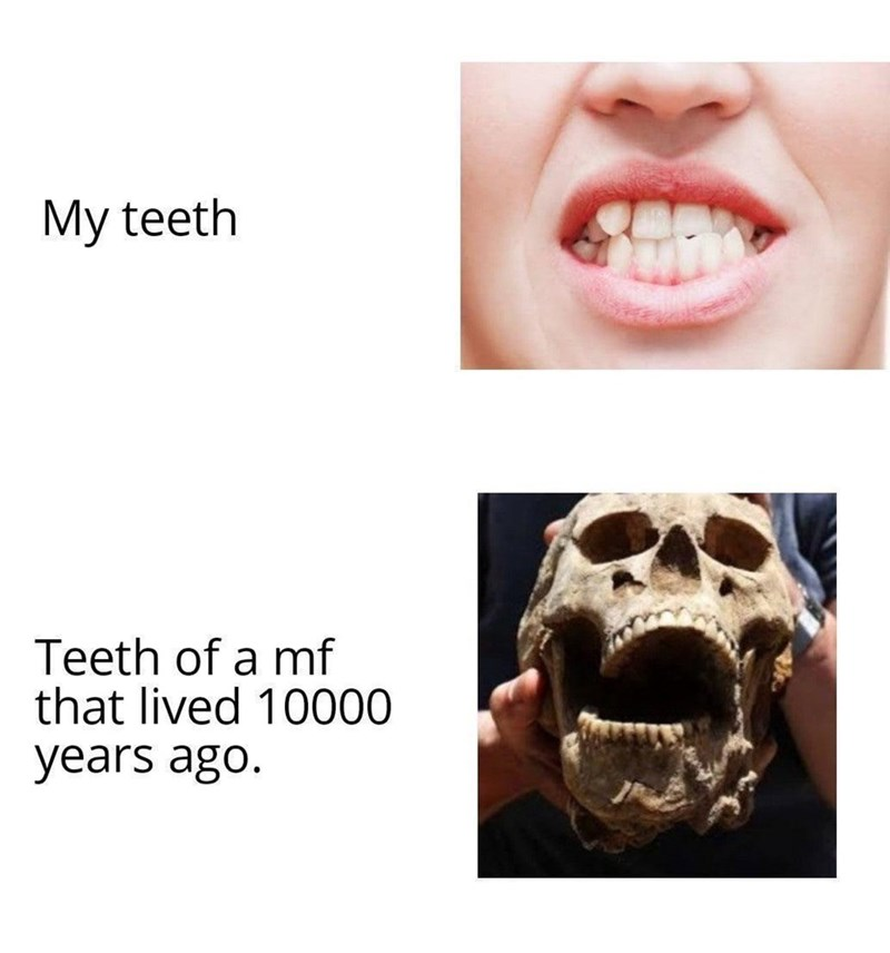 Nose - My teeth Teeth of a mf that lived 10000 years ago.