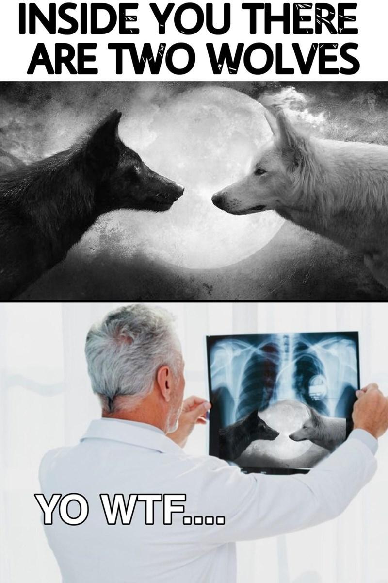Funny random memes, dank memes, lol, inside you are two wolves, x-ray, lol