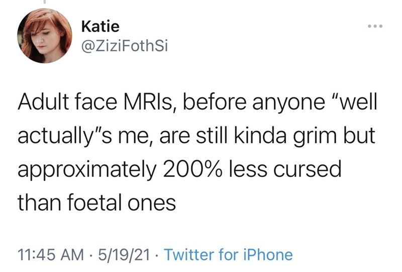 """Font - Katie @ZiziFothSi Adult face MRIS, before anyone """"well actually's me, are still kinda grim but approximately 200% less cursed than foetal ones 11:45 AM · 5/19/21 · Twitter for iPhone"""
