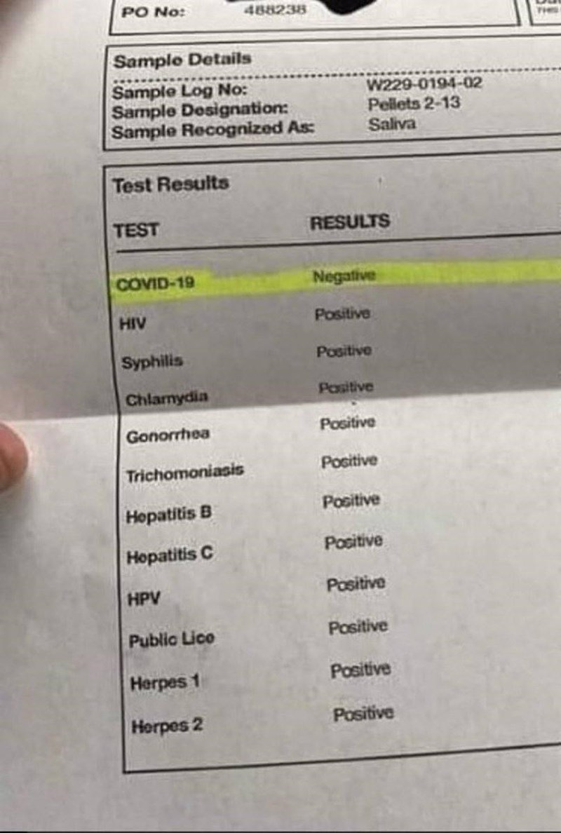 Font - PO No: 488238 THES Sample Details Sample Log No: Sample Designation: Sample Recognized As: W229-0194-02 Pellets 2-13 Saliva Test Results TEST RESULTS COVID-19 Negative HIV Positive Syphilis Positive Pasitive Chlanydia Gonorrhea Positive Trichomoniasis Positive Positive Hopatitis B Hopatitis C Positive HPV Positive Public Lice Positive Herpes 1 Positive Horpes 2 Positive