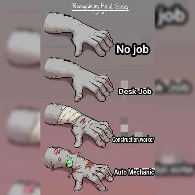 Jaw - Recognising Hand Scars by Coal Cob No job Desk Job Construction worker Auto Mechanic