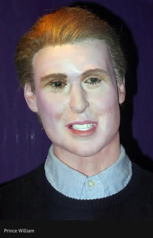 Forehead - Prince William