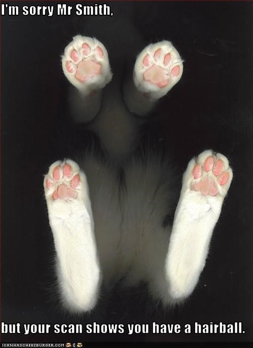 I'm sorry Mr Smith,  but your scan shows you have a hairball.
