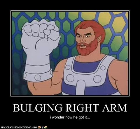 BULGING RIGHT ARM