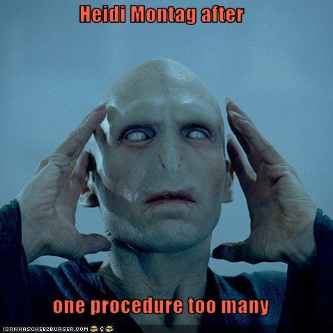 Heidi Montag after  one procedure too many