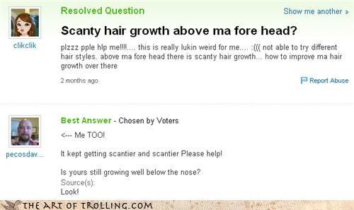 alopecia,bald,girls,hair,nose,scant,Yahoo Answer Fails
