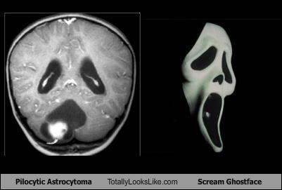Pilocytic Astrocytoma Totally Looks Like Scream Ghostface