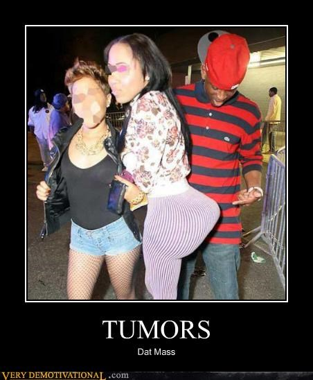 booty,cancer,hilarious,tumors,wtf