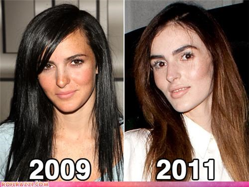 Ali Lohan: Gurrl, WTF Happened?!