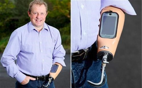 Prosthetic Smartphone Arm of the Day