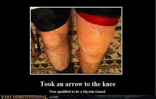TOOK AN ARROW TO THE KNEE