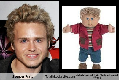 Spencer Pratt Totally Looks Like Old Cabbage Patch Kid