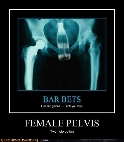 coke,female,pelvis,Terrifying,x ray