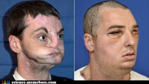 The First Full Face Transplant: A Stunning Success