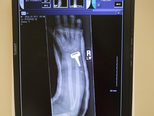 FAIL Nation: X-Ray FAIL