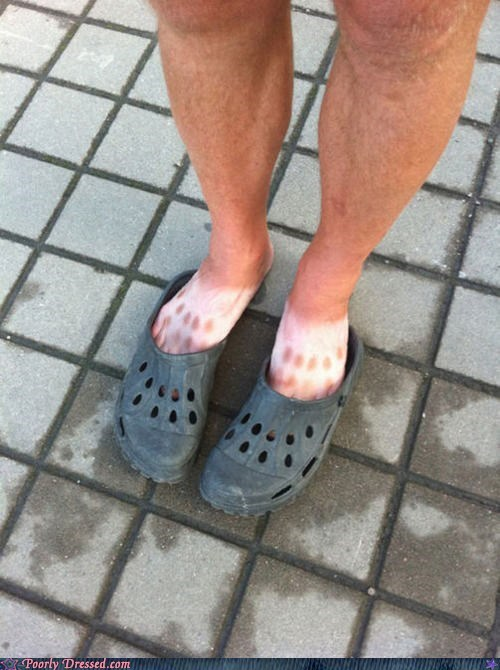 Poorly Dressed: This is The Cost You Pay for Crocs!