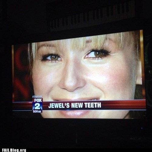banner,fox news,jewel,musician,new teeth