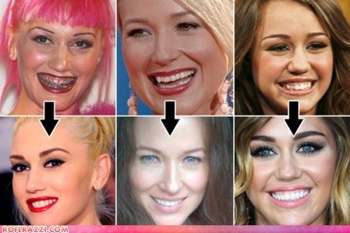 Stars Who've Gone Dental!