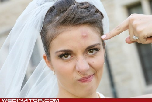 acne,bride,funny wedding photos,pimple,zit