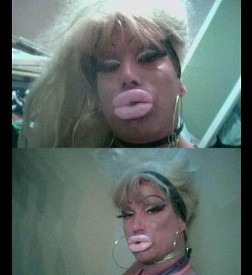 collagen,drag queen,duckface