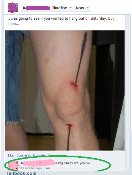 I Took a Tattoo to the Leg
