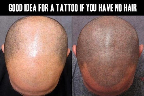 A Cure for Baldness