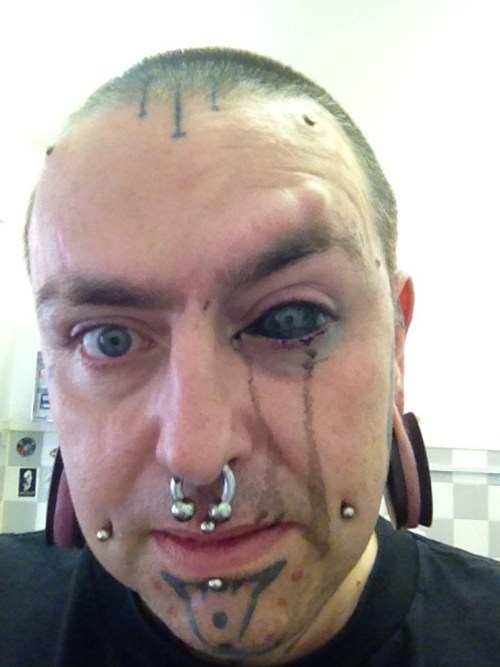 Yes, That's Right, He Tattooed His Eyeball