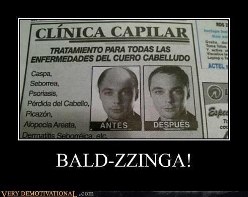 BALD-ZZINGA!