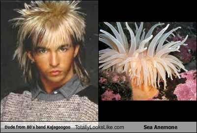 Limahl (Kajagoogoo) Totally Looks Like Sea Anemone