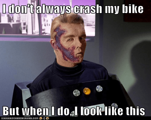 I don't always crash my bike  But when I do, I look like this