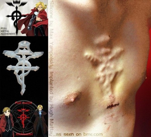 This Full Metal Alchemist Implant Looks Painful