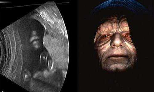We're Having a Baby! It's a Sith!