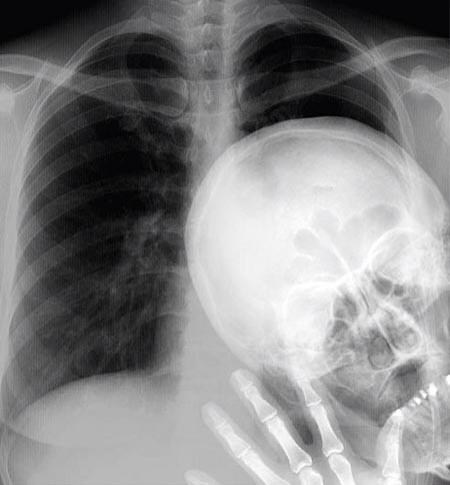 The Chest X-Ray Photobomb