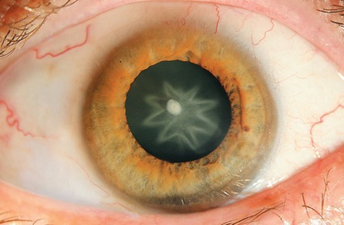 Science Weird: Man Punched in the Eye Gains Star Shaped Cataract
