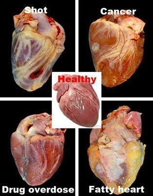 Know Your Heart Problems