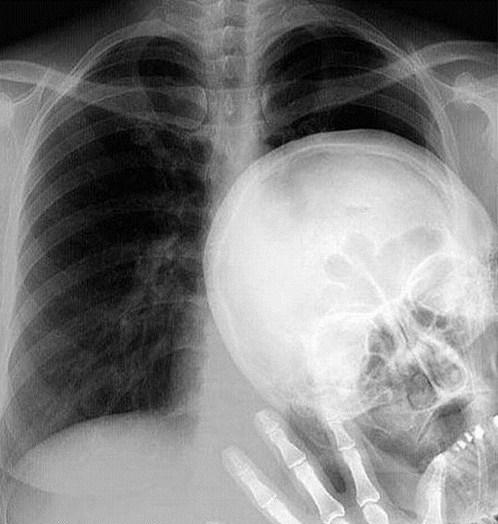 photobomb,radiologist,funny,x ray,x-rays