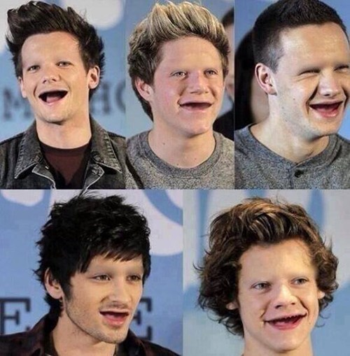 What If: One Direction Lost Their Teeth and Eyebrows