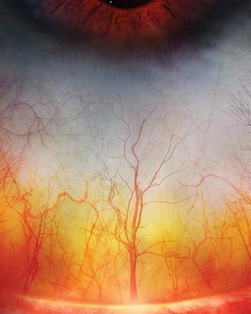 Microscopic Photo of the Human Eye or Raging Forest Fire?